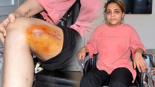 Eski eşinin vurduğu Derya, tekerlekli sandalyeye mahkum oldu