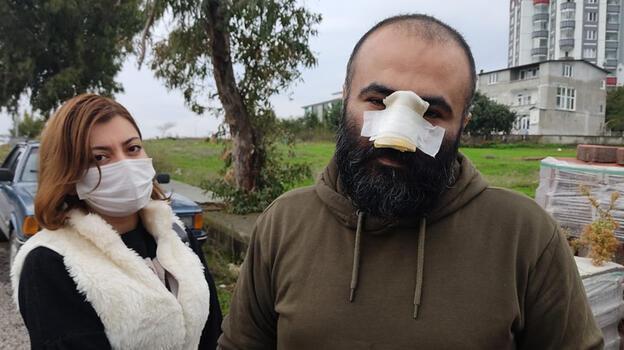 Tasmasız dolaştırılan pitbull, iş insanının burnunu kopardı