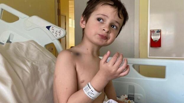 Kardeşi doğduktan bir gün sonra ölümcül hastalığa yakalandı! Yaşananlar mucize gibi...