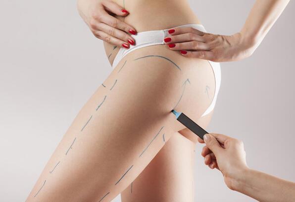 Yeni nesil vaser liposuction