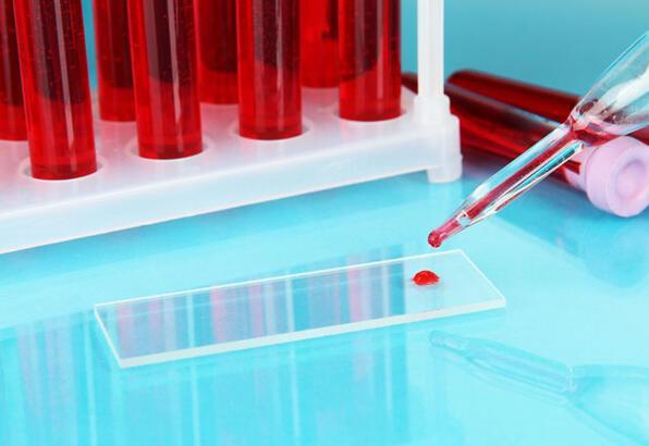 Kan grubuna göre diyet nasıl yapılır?