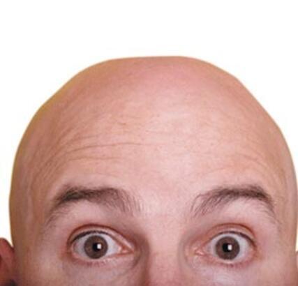 FUE yönetimiyle saç ekimi nasıl yapılır ?