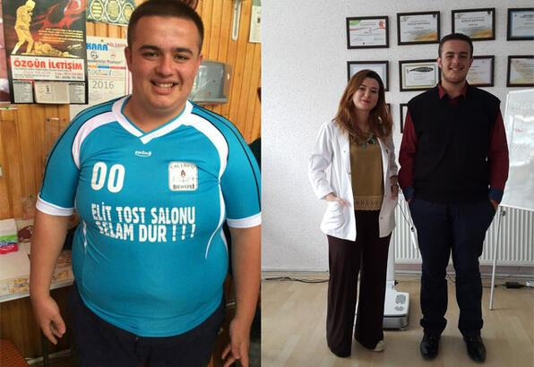 7 ayda ameliyatsız 48 kilo verdi