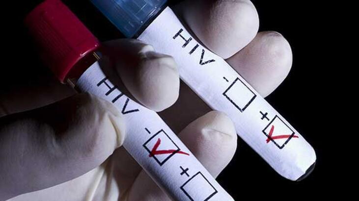 AIDS hastası biri artık 78 yaşına kadar yaşayabilir