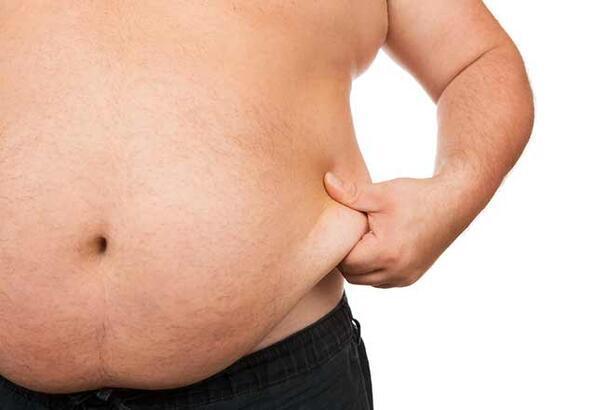 Obezitenin sebepleri neler?