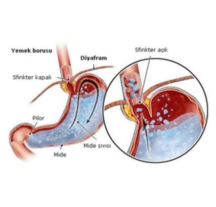 Gastrit Nedir?