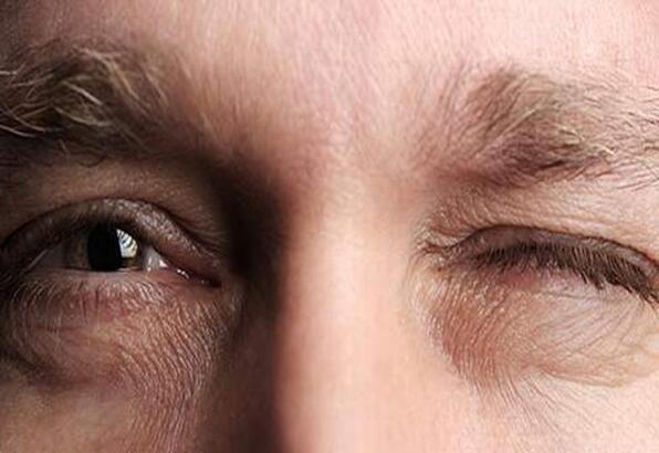 Sağ ve sol göz seğirmesinin nedenleri - Göz seyirmesi neden olur, gözler neden seğirir?
