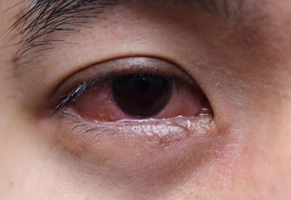 Göz alerjisi körlüğe sebep olabilir