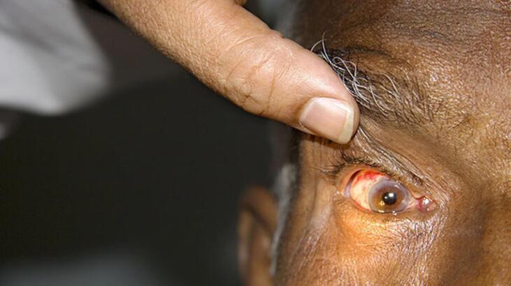 Hindistan'da el feneri ışığında katarakt ameliyatı