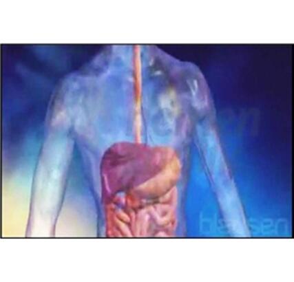 Akciğer kanserinde kemoterapi uygulaması