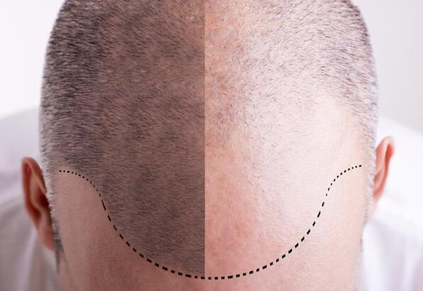 DHi saç ekiminin FUE saç ekiminden farkı nedir? - Estetik