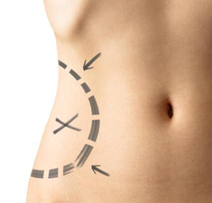 Sigara içiyorsanız Liposuction yaptırmayın!