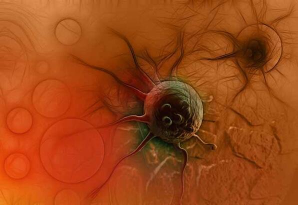Mide kanseri nedir, nasıl tedavi edilir?