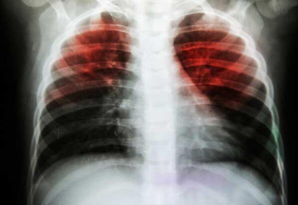 Tüberküloz hastalığının belirtileri nelerdir?