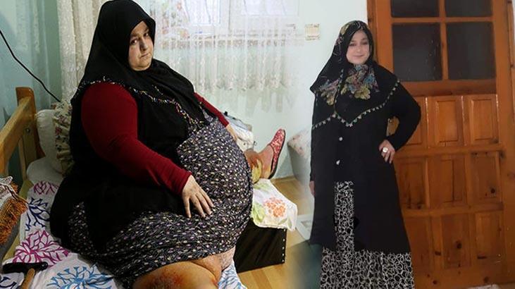 250 kilodan bir buçuk yılda 95 kiloya düştü!