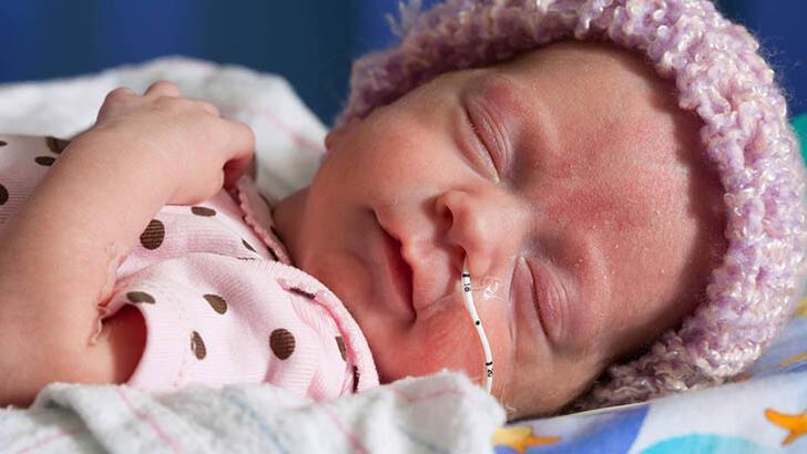 Prematüre bebek bakımının püf noktaları