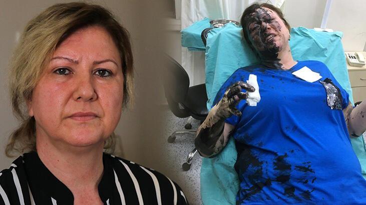 İş kadınını darbedip, üzerine siyah renkli sıvı madde döktüler