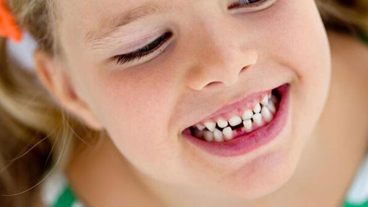 Bu öneriler süt dişlerini koruyor!