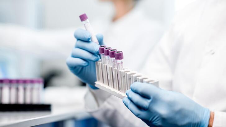 Enfeksiyon hastalıkları nedir, neye bakar? Klinik mikrobiyoloji bölümü (intaniye) doktoru hangi hastalıklara bakar?