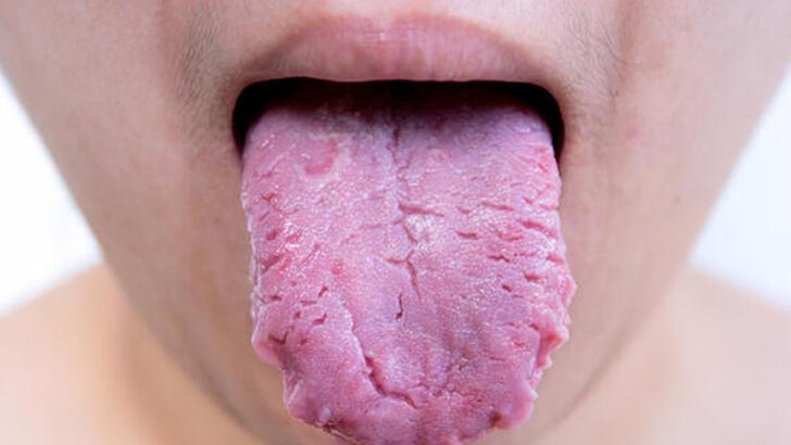Dil yarası neden olur? Dil yarası nasıl geçer? - Dil yarası tedavileri