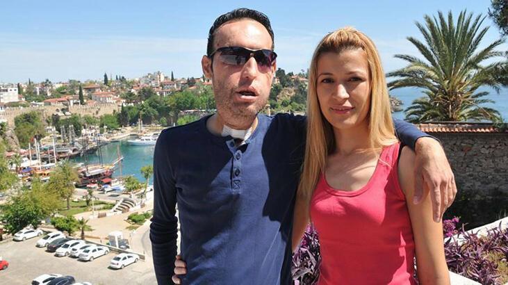 Yüz nakilli Recep Sert ile eşi Esma Sert'ten ayrılık kararı
