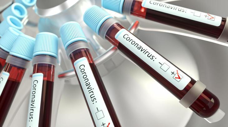 Son dakika haberler: Ruslar dünyaya duyurdu! Corona virüs ilacı geliştirildi