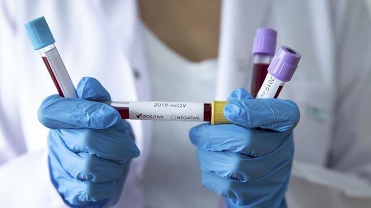 ABD Gıda ve İlaç İdaresinden 2 dakikada sonuç veren covid-19 testine onay