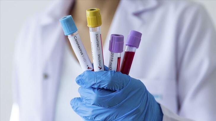Hidroksiklorokin (Sıtma ilacı) nedir, neye yarar? Coviid-19 tedavisinde etkili mi?