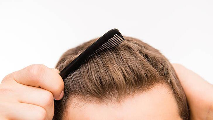 Hermest Clinic Saç Ekimi Sonrası Dikkat Edilmesi Gerekenleri Açıkladı