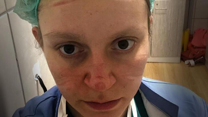 Corona virüs mücadelesinde hastalara, onların şefkatli elleri şifa dağıttı