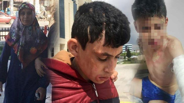 3'ü çocuk 6 kişiyi kezzapla yaralamıştı! Yeniden yargılanacak