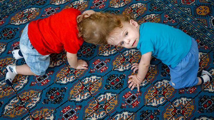 Birbirlerinden ayrılan siyam ikizlerinden haber var