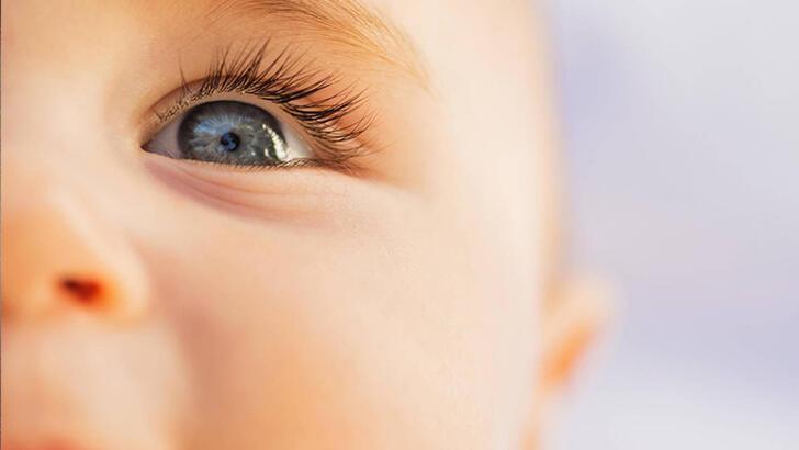 Bebeklerde ve çocuklarda katarakt neden olur, nasıl fark edilir?
