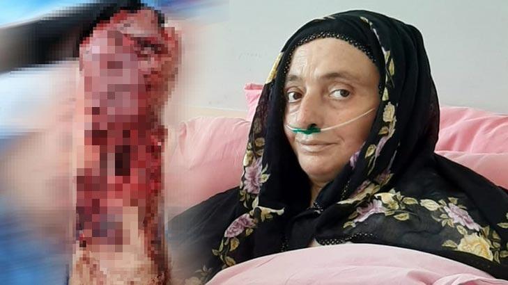 Trabzon'da 3 köpeğin saldırısında uğrayan kadının hayati tehlikesi sürüyor!