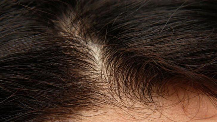 Kepek nasıl geçer? Kepekli saça ne iyi gelir? Kepeği geçirmenin doğal yolları nelerdir?
