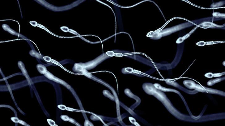 Erkek kısırlığı ile ilgili yeni gelişme! Türk uzmanlar keşfetti