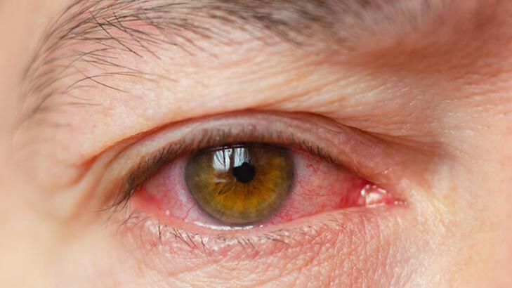 Sigaranın bir zararı daha ortaya çıktı! Gözleri...