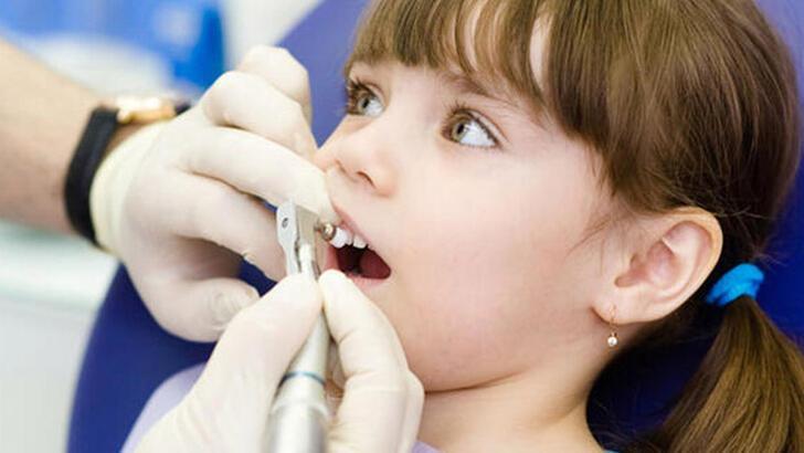 Çocukların sağlıklı dişlere sahip olması için ebeveynlere tavsiyeler