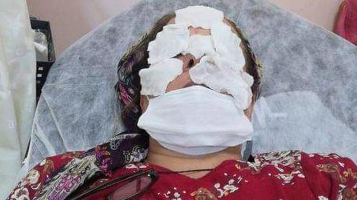 Fındık bahçesini ilaçlayan kadın, rahatsızlanınca hastaneye kaldırıldı!