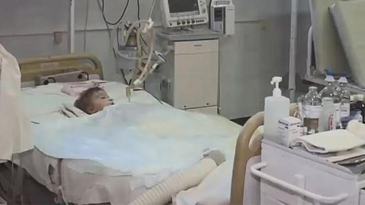 2 yaşındaki bebek doğum gününde köpeklerin saldırısına uğradı