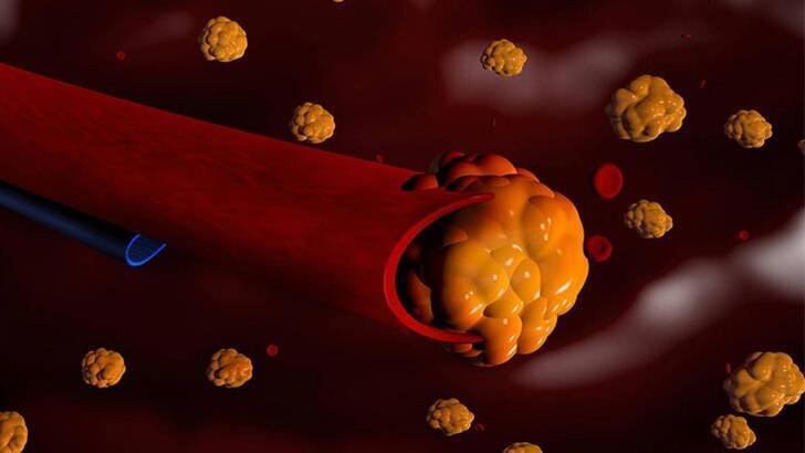 Erken yaşta geçirilen kalp krizinin en önemli nedeni: Ailevi Hiperkolesterolemi