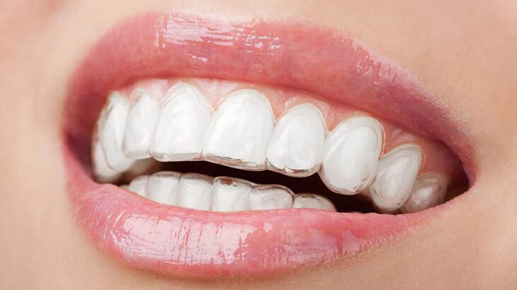 Diş teline alternatif yeni nesil teknoloji: Şeffaf plak