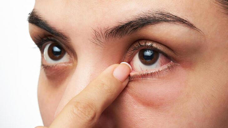 Normal Göz Tansiyonu Değeri Kaç Olmalıdır? Kaç Mmhg Normal Sayılır?