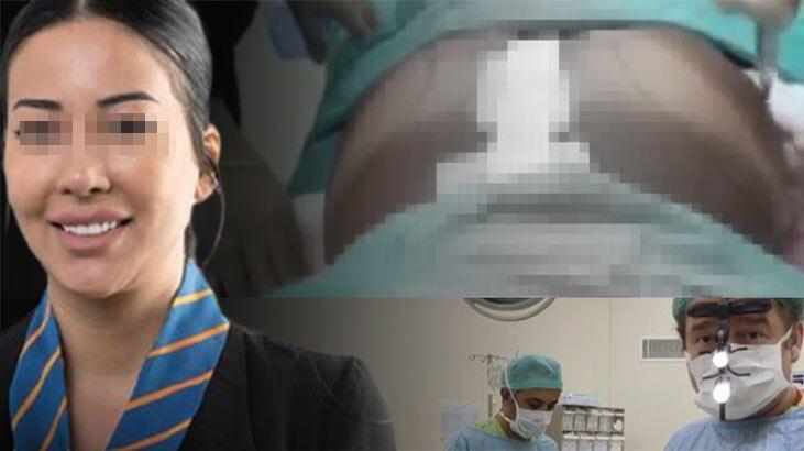 Genç kadın Brezilya kalçası istedi, ölümden döndü! Estetik faciası