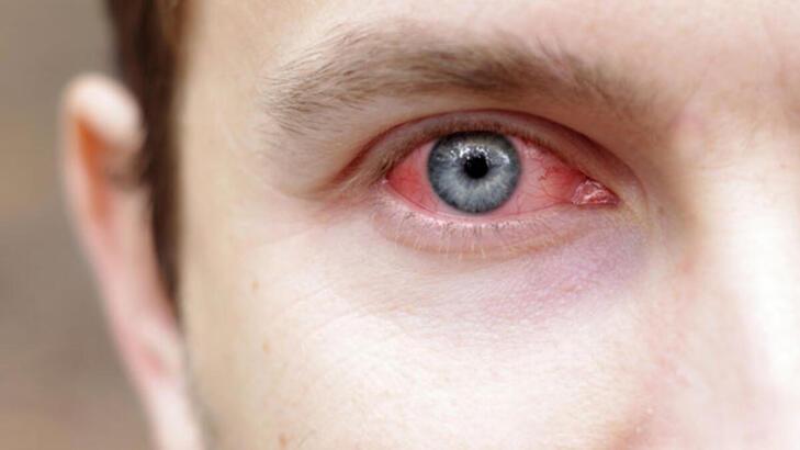 Adenovirüs nedir, nasıl bulaşır? Adenovirüs belirtileri ve tedavi yöntemi