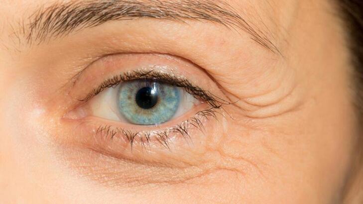 Astigmat belirtileri nelerdir? Astigmat neden olur, nasıl tedavi edilir?