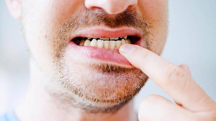 Diş Eti Çekilmesine Ne İyi Gelir, Nasıl Geçer? Diş Eti Çekilmesi Tedavisi Nasıl Yapılır?
