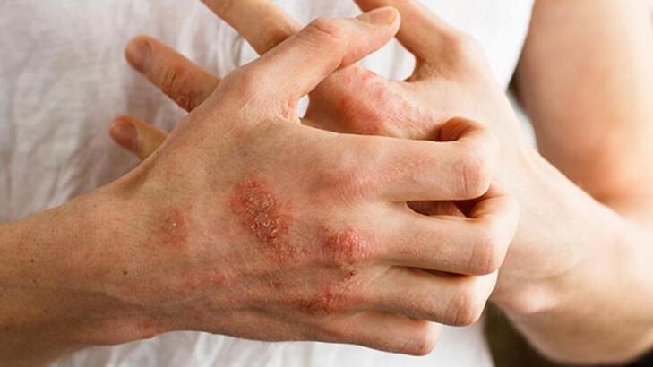 Atopik dermatit nedir? Atopik dermatit hastaları ne yememeli? Kesin çözüm önerileri