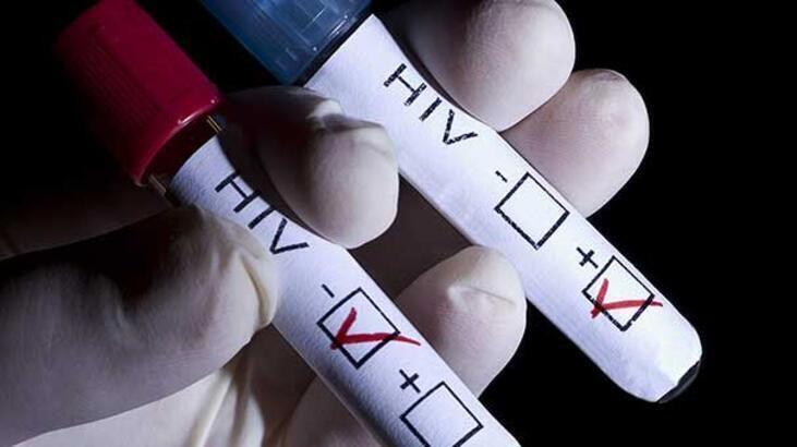 Hıv Nedir, Hıv Virüsü Nasıl Bulaşır? Hıv Testi Pozitif Çıkarsa Ne Yapılmalıdır?