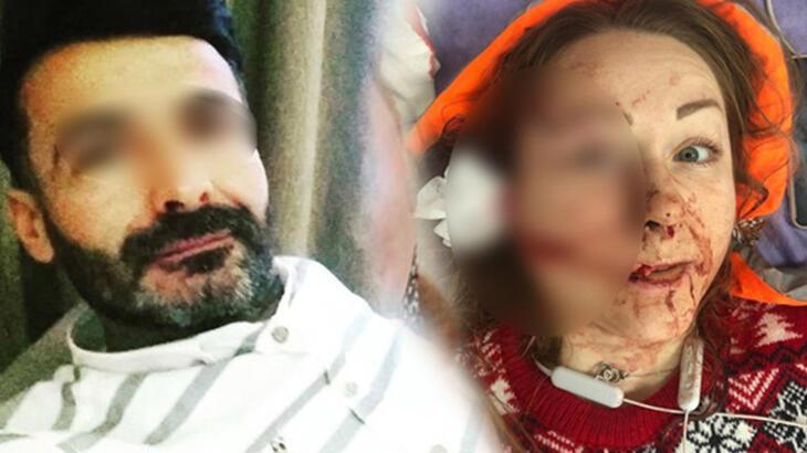 Son dakika... Eşinin yüzünü falçatayla yaralayan şüpheli tutuklandı!